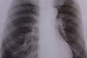 Nebenwirkungen für Lunge oft unterschätzt