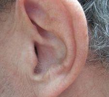 Hörverlust wirkt sich auf die Kognition aus