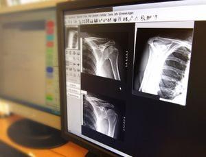 Diagnose Schulterbruch