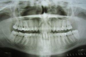 Zahnfüllungen im Röntgen
