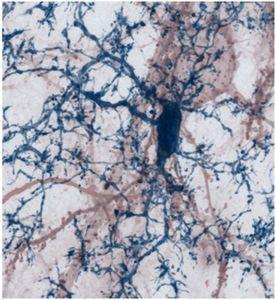 Kontakte von Mikrogliazelle mit Nervenzelle