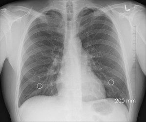 Lungenröntgen
